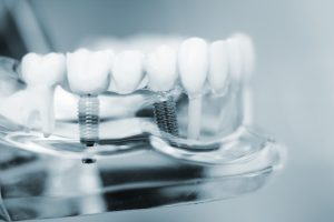 transparent view of dental implants