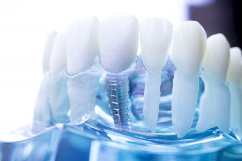 Single dental implant in a plastic model