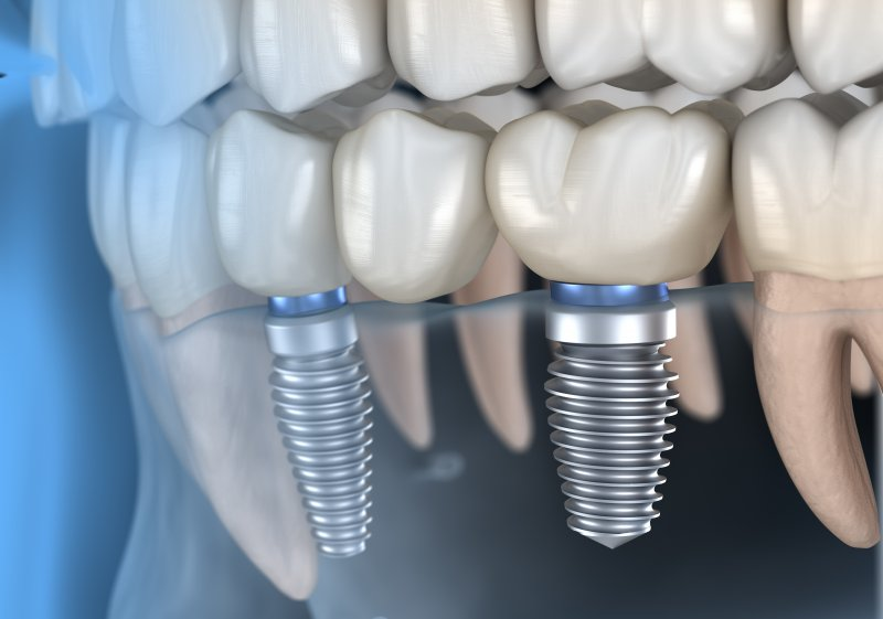 a diagram of a mouth with two dental implants