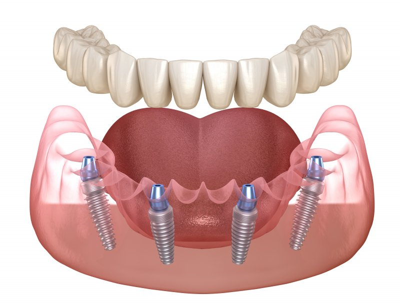 All-on-4 implant system for the lower arch
