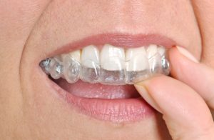 Clear braces in Burlington are a wonderful option for adults.