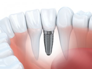 dental implants bedford ma